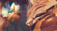Extraen una serpiente de la garganta de una mujer