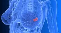 El autoexamen no puede detectar lesiones pequeñas porque estas se ocultan en el tejido mamario y el tacto no puede identificarla.