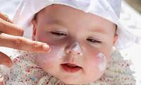 El uso de gorros, lentes de sol y ropa de algodón contribuye mucho a evitar daños en la piel de los bebés.