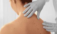 Si presentas manchas o lunares sospechosos en la piel debes hacerte un despistaje de cáncer.