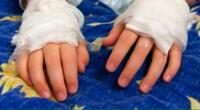 mujer es detenida tras ser acusada de quemar las manos de sus hijos