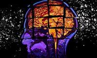 Israel: expertos hallan método para detener la propagación de un tipo de cáncer de cerebro.