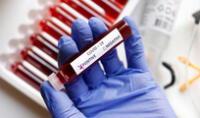 Los biomarcadores sanguíneos están surgiendo como herramientas importantes en trastornos.