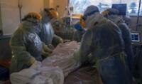 Uruguay: confirman más casos de 'hongo negro' asociado a la COVID-19 y expertos muestran su preocupación.