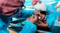Debido a la pandemia no se ha logrado vacunar a menores contra este mal.