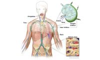 La mayoría de los ganglios linfáticos se acumulan en el cuello, las axilas y la ingle.
