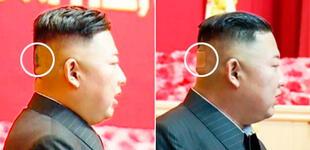 ¿Los últimos días de Kim Jong- un? Una extraña mancha verde en su cabeza alimenta especulaciones
