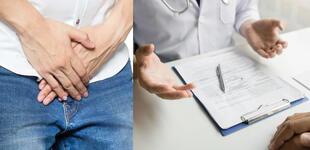 La hernia inguinal: ¿Cuáles son sus causas y efectos?