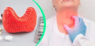 Cáncer de tiroides: 7 señales para detectar la enfermedad a tiempo