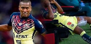 Pedro Aquino sufre lesión durante el partido América vs. Tigres [VIDEO]