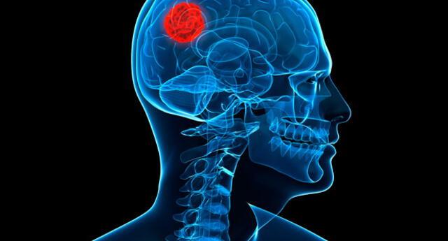 Alerta a tumores cerebrales
