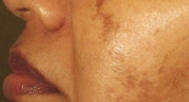 Consejos para proteger tu piel