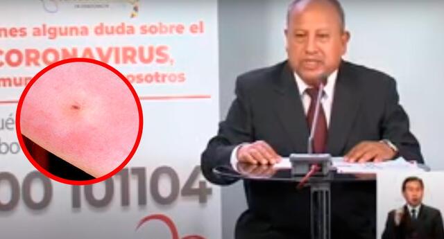 Jefe de Epidemiología del Ministerio de Salud de Bolivia Virgilio Pietro.