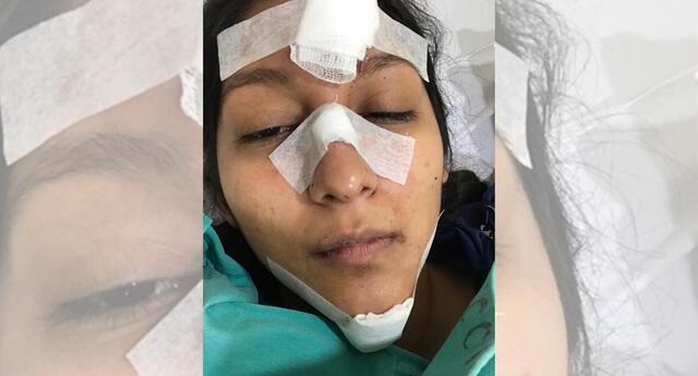 Ciclovía de Magdalena del Mar causó graves heridas en una joven.
