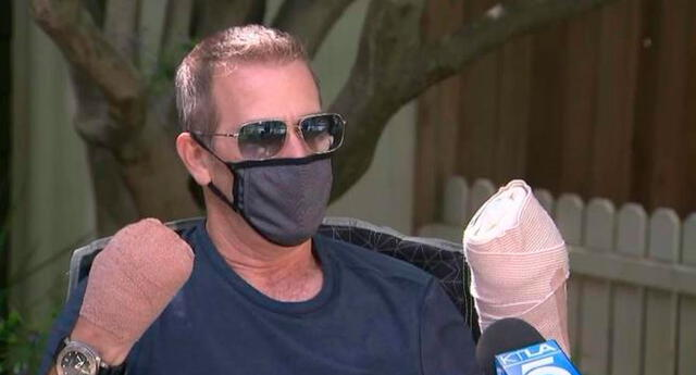 Hombre que se quedó sin dedos por el coronavirus cuenta su historia