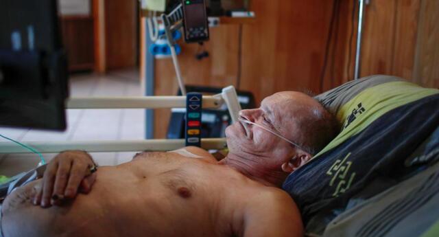 Alain Cocq, de 57 años, padece una enfermedad rara que hace que las paredes de sus arterias se peguen.