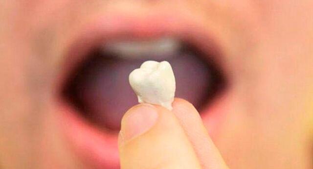 Soñar con la caída de los dientes superiores: normalmente está asociado al dolor de una pérdida de algún ser querido.