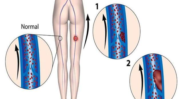 La trombosis venosa profunda es cuando un coágulo obstruye tus venas.