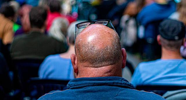 El estudio indicó que los hombres con alopecia pueden desarrollar COVID-19 grave.
