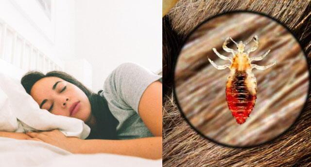 Interpretación de los sueños: ¿Qué significa soñar con piojos y matarlos?