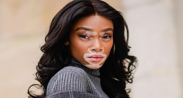 El vitiligo causa una despigmentación de la piel.