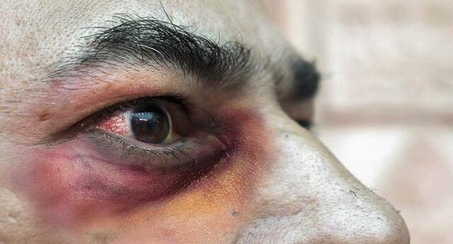 El hongo negro ataca a personas que están en recuperación o se han recuperado del coronavirus.