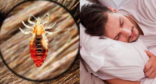 ¿Qué significa soñar con piojos en la cabeza? ¿Cómo lo interpreto?