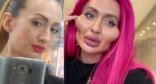 Mujer gasta miles de dólares en cirugías para tener las mejillas más grandes del mundo.