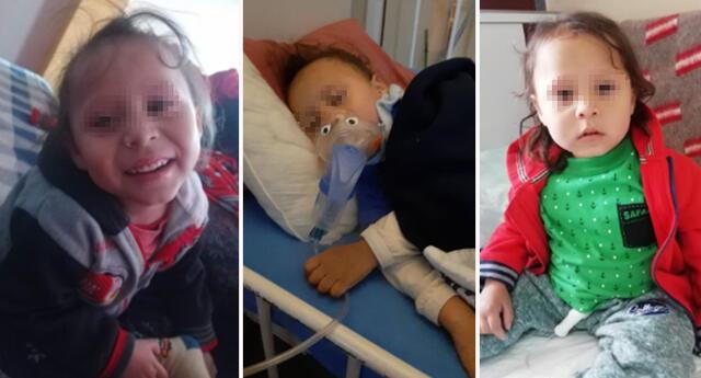 Menor sufre de síndrome de Bartter.