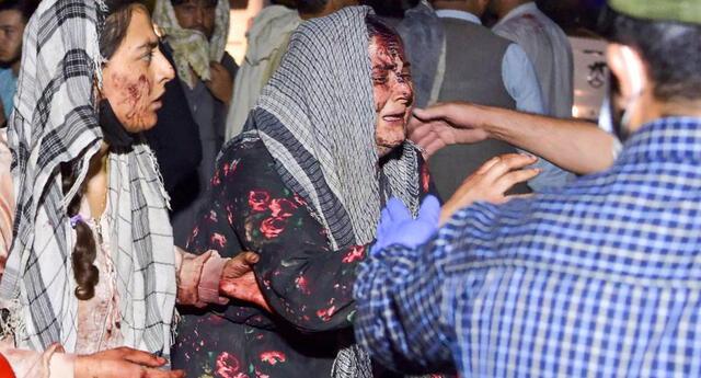 Mujeres heridas llegan a un hospital después de dos explosiones afuera del aeropuerto de Kabul, Afganistán, el 26 de agosto de 2021. (Wakil KOHSAR / AFP).