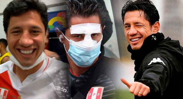 Gianluca Lapadula habló acerca de su tabique que se desvió en la Copa América 2021.