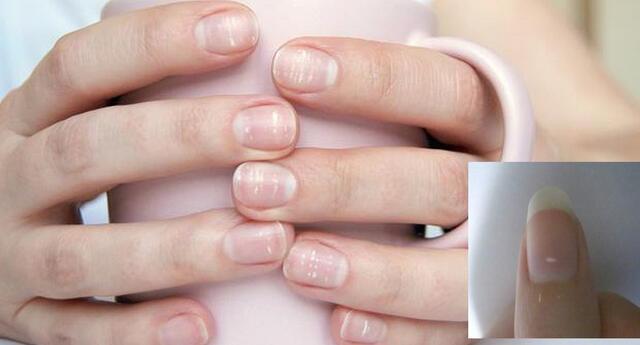 Las manchas blancas en la uñas no son por falta de calcio.